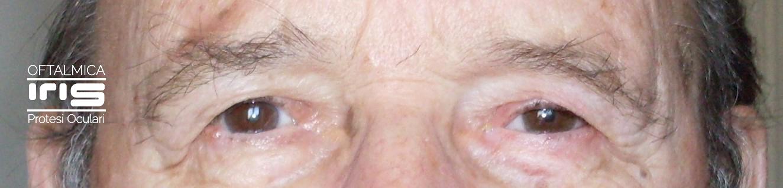 protesi oculare realizzato da oftalmica iris - genova - anziano