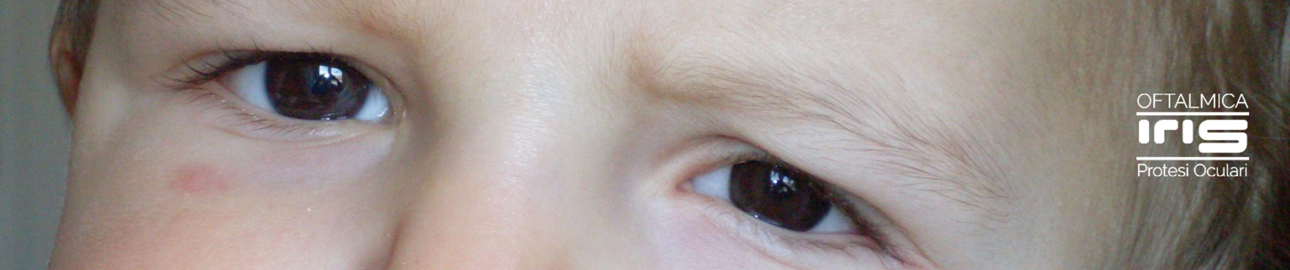 protesi oculare realizzato da oftalmica iris - genova - protesi per bambini