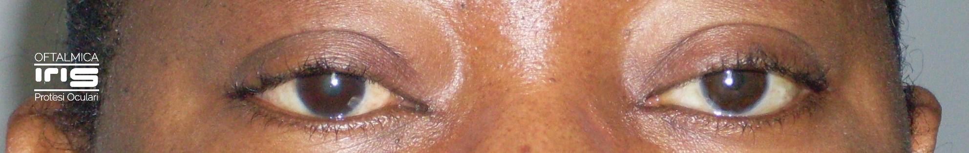 protesi oculare realizzato da oftalmica iris - genova - occhi neri